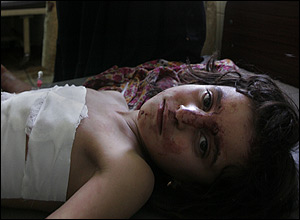 injured_girl_300