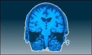 brain_scan_graphic