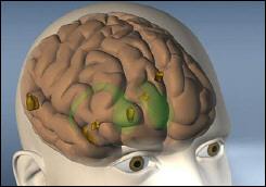 gulf_war_brain_shrink