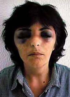 Joana Case Revision: Leandro Silva's Statement & Comments Leonor-cipriano3