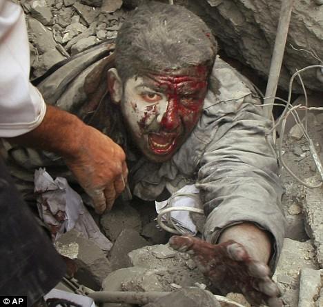 gaza_injured_man